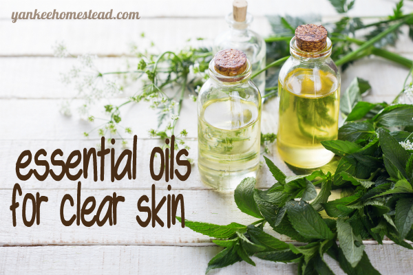 Essential Oils for Clear Skin | Yankee Homestead